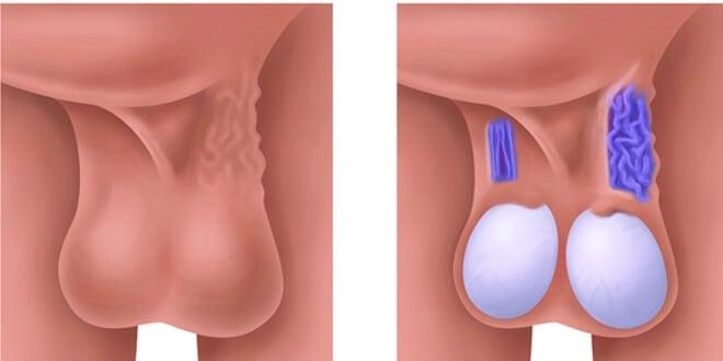 Varikokela – simptomi, dijagnoza i liječenje | Muško zdravlje ...