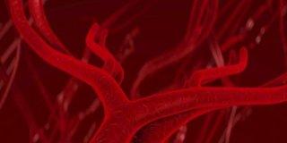 Vaskulitis – vrste, uzroci, simptomi i liječenje