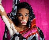 vitiligo naslovna
