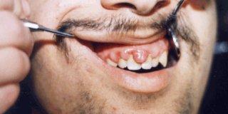 Akutni nekrotični ulcerozni gingivitis (rovovska usta) – uzroci, simptomi  i liječenje