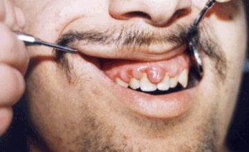 akutni nekrotični ulcerozni gingivitis