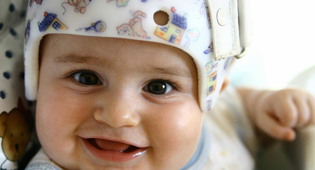 djeca ozljeda mozga