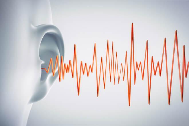 zujanje u ušima laser