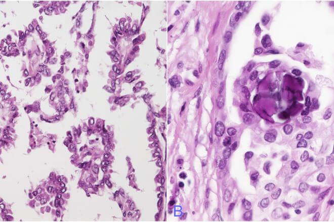 papilarni karcinom stitnjace