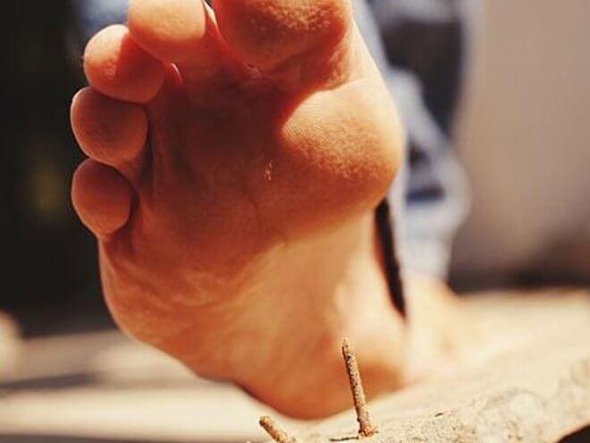 Tetanus noga