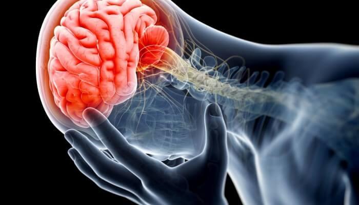 trauma mozga