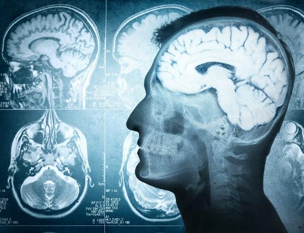 trauma mozga llijecenje