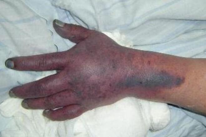 trombocitopenia purpura