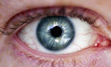 klamidija u oku