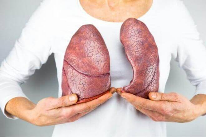 Tuberkuloza pluća
