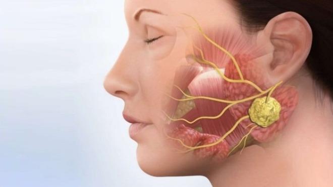 Parotidne-žlijezde