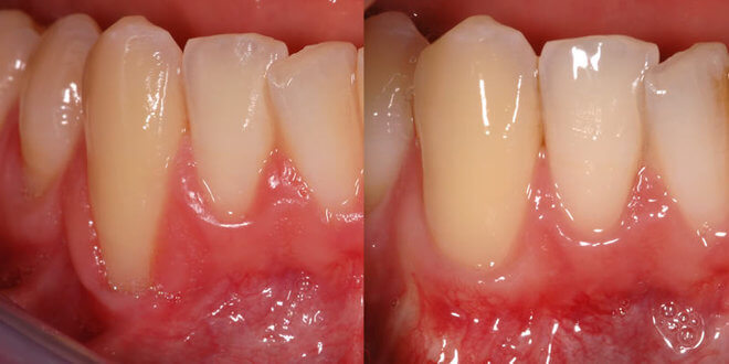 Agresivni parodontitis