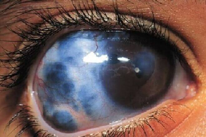 Glaukom ili očni tlak