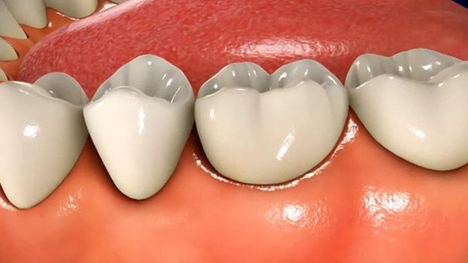 Stupnjevi periodontitisa