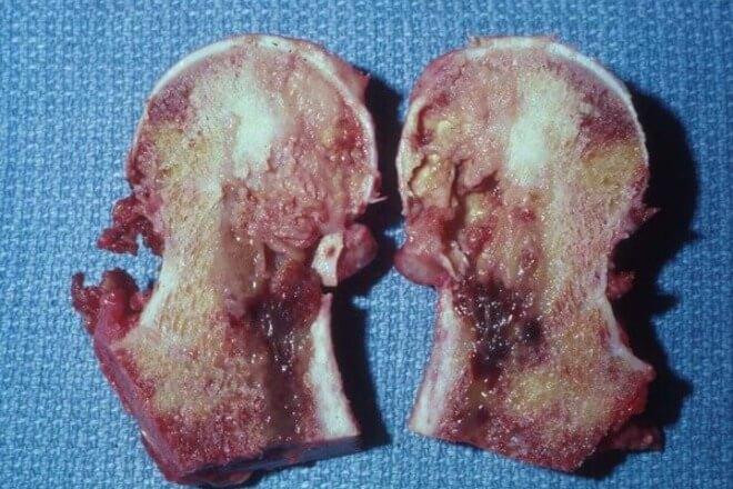 fibrosarkom
