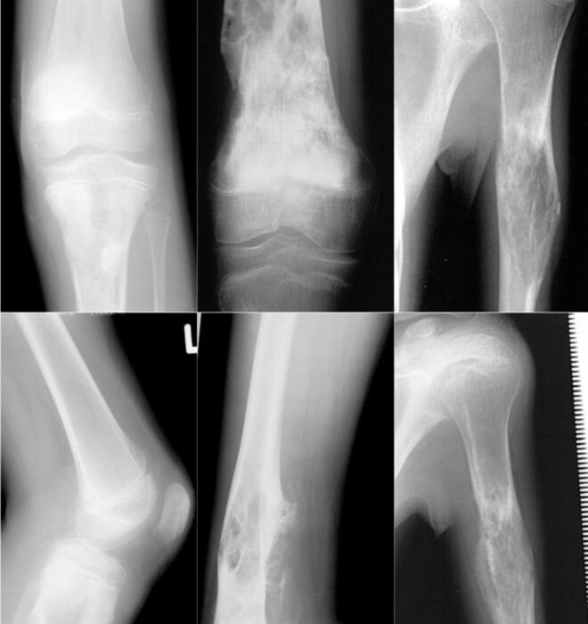osteosarkom lijecenje