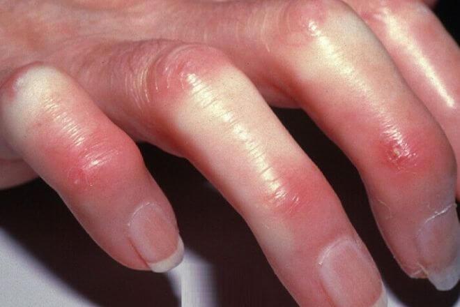 Sklerodermija ruke