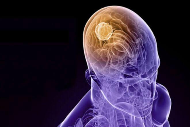 Parcijalni napad epilepsije