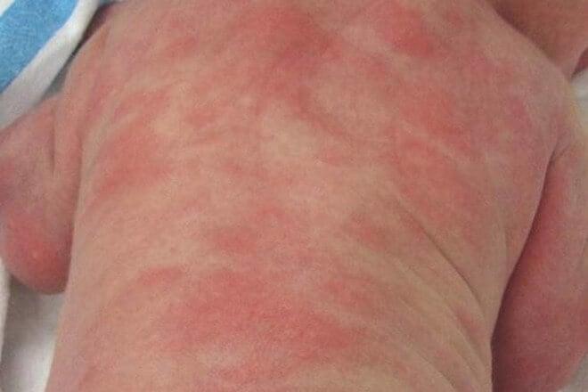 Erythema toxicum