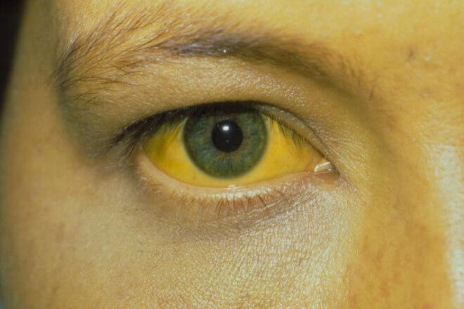 zutica oko