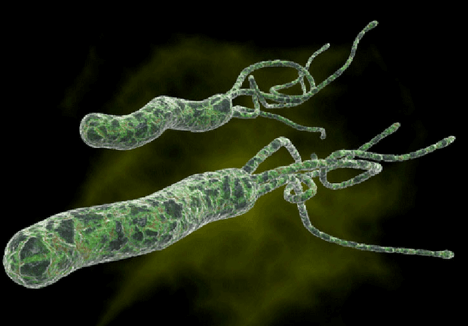 Čir na želucu Heliobacter pylori