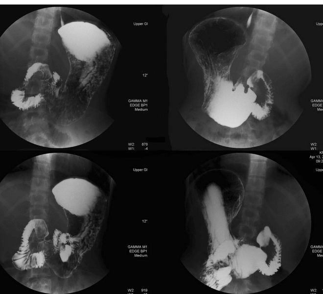 Čir na želucu - rendgen