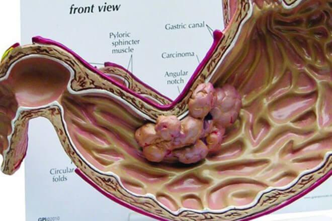 karcinom zeluca