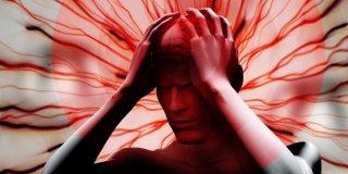Moždani udar – uzroci, simptomi i liječenje