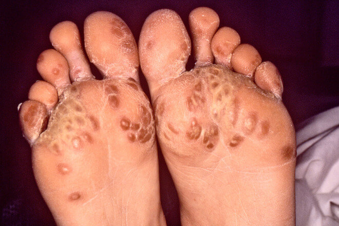 reaktivni artritis