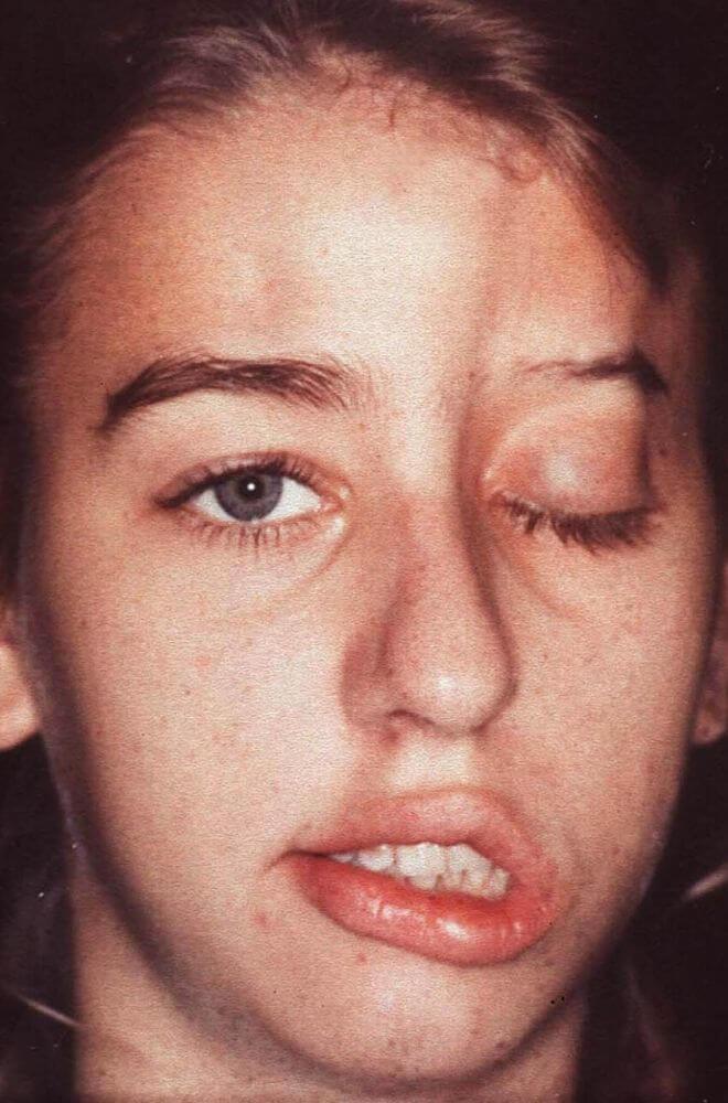 Sklerodermija lica