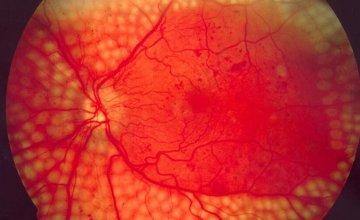 dijabeticka retinopatija