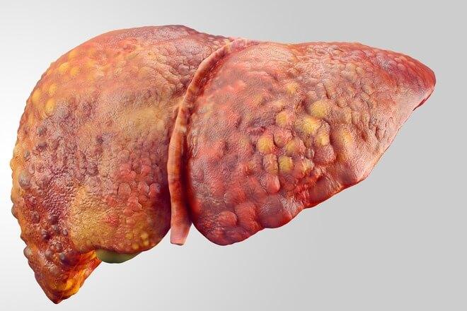 masna jetra ciroza