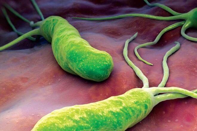 Bakterija Helicobacter