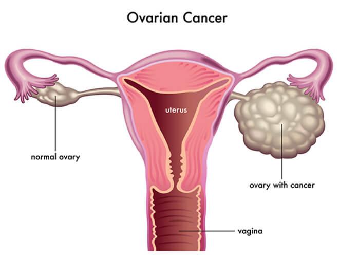 karcinom jajnika