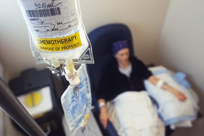 kemoterapija