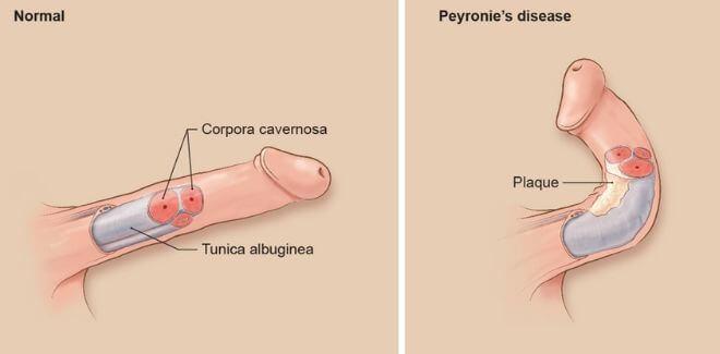Peyronijeva bolest