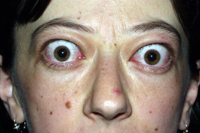Simptomi hipertireoze