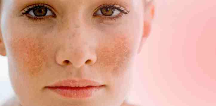 melasma pigmentacija