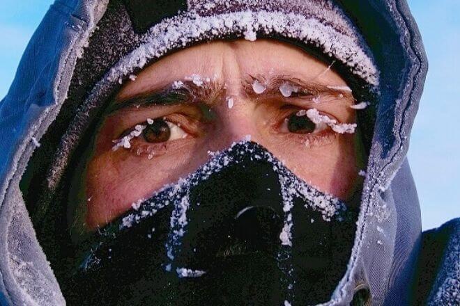 Hipotermija