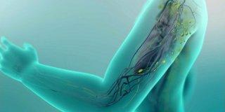 Limfedem – uzroci, simptomi i liječenje