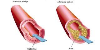 Ateroskleroza – uzroci, simptomi i liječenje