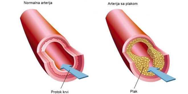 ateroskleroza