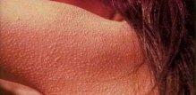 keratosis-pilaris