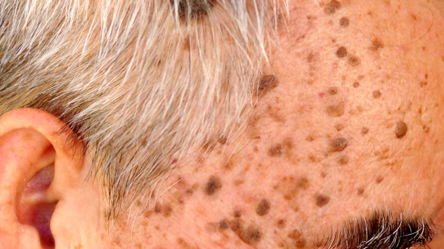 seboreicna keratoza