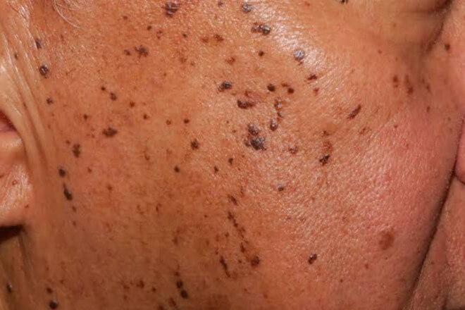 seboroicna keratoza lice