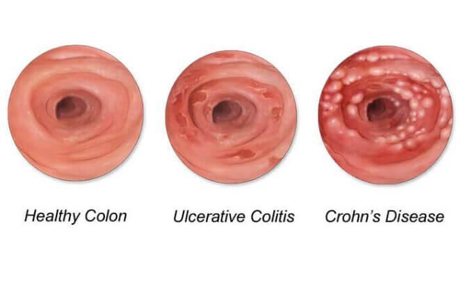 Upalna bolest crijeva I