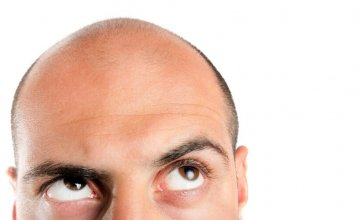 gubitak kose alopecija