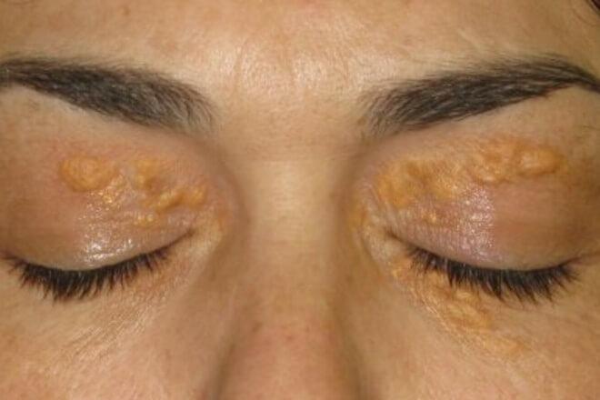 masne naslage oko očiju
