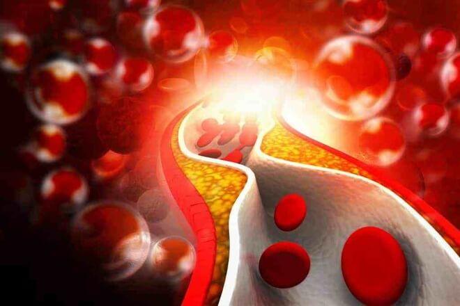 povisen kolesterol