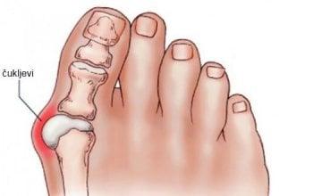 cukljevi-noge
